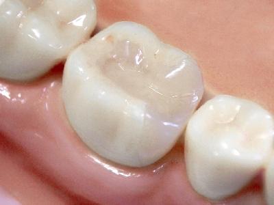 かぶせ もの 値段 歯